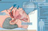 Sindrome de Abnea Obstructiva del Sueño