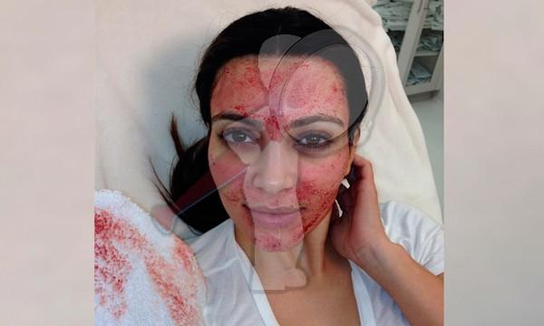 """Facial Vampiro"", un tratamiento estético de alto riesgo"