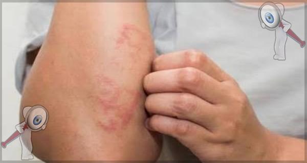 Registran seis estados de México casos de lepra